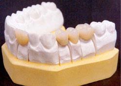 dentadura2 Tipos de Dentaduras